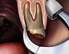 molar tooth extraction