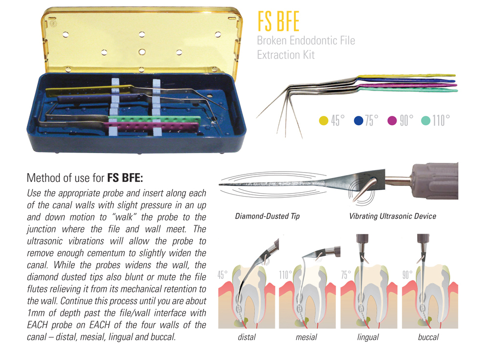 Broken Endo File Extraction Kit