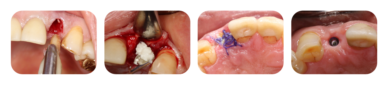 Allograft Clinical Cases