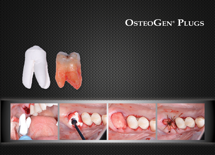 One-step  Bone Grafting Banner
