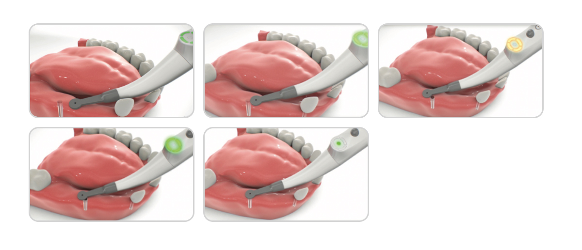 Implant Locator System, Instructions For Use